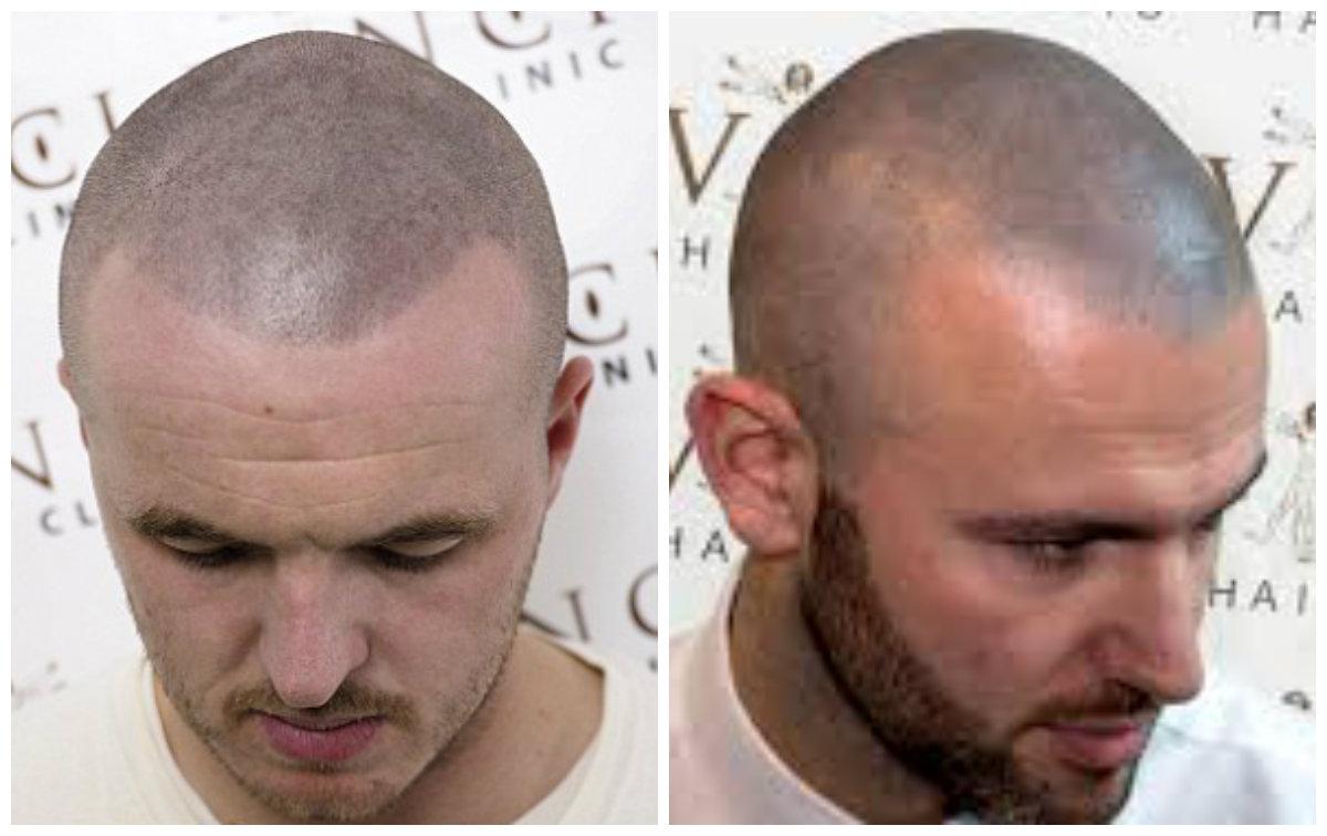 tatuagem de cabelo, tatuagem de couro cabeludo
